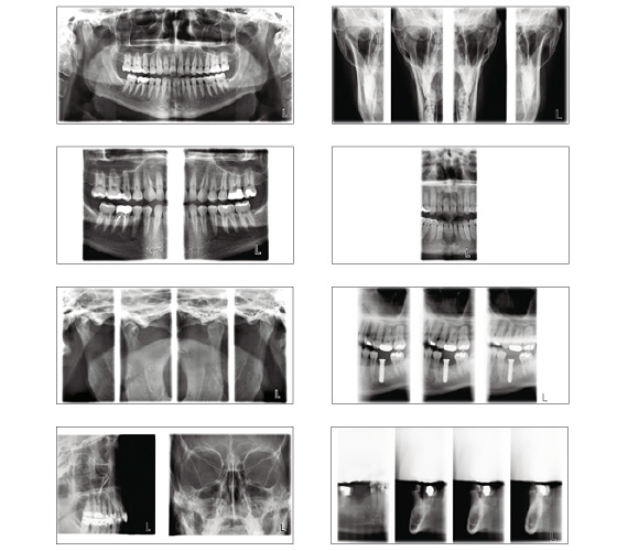 Planmeca ProMax 2D extensive imaging programs