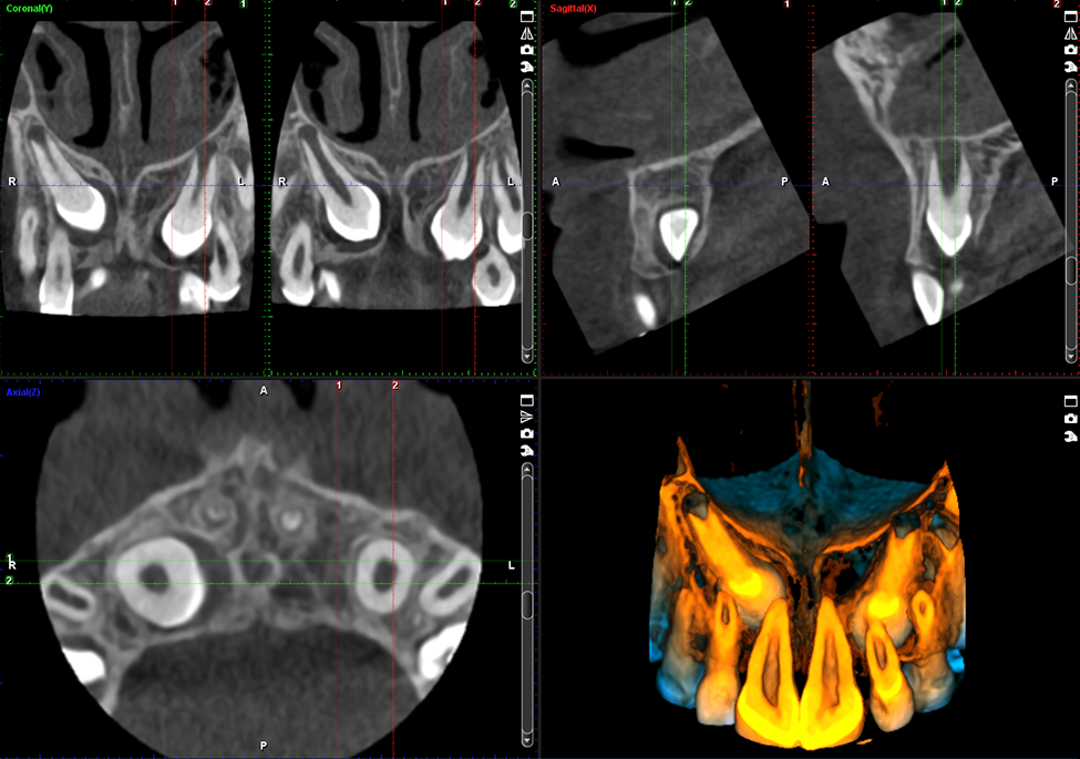 Promax 3D Classic impacted canine
