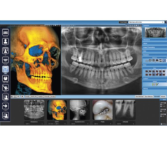 Planmeca ProMax 3D Max Superior CBCT image quality
