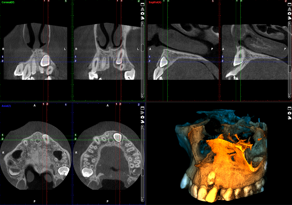 ProMax 3D Plus middle ear
