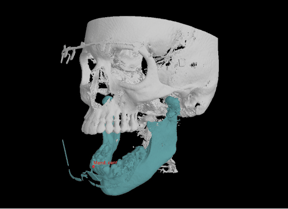 Planmeca 4D jaw motion