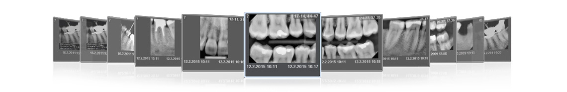 Planmeca ProX intraoral x-ray images