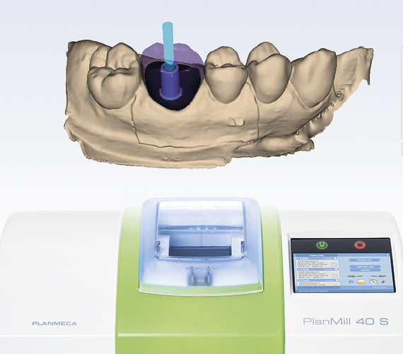 Planmeca PlanCAD Easy implant workflow for clinics