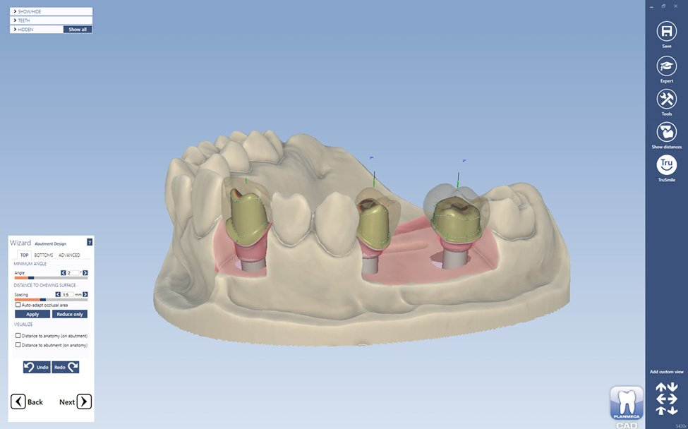 Design Software For Prosthetic Dentistry Planmeca Plancad Premium