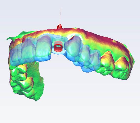 Planmeca Romexis 3D implant guide