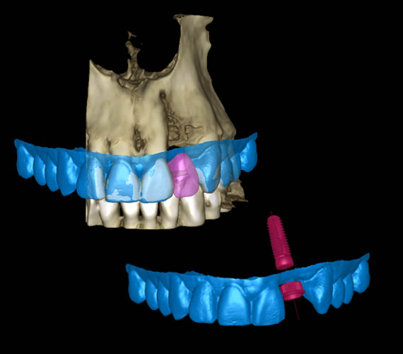 Planmeca Romexis 3D implant planning