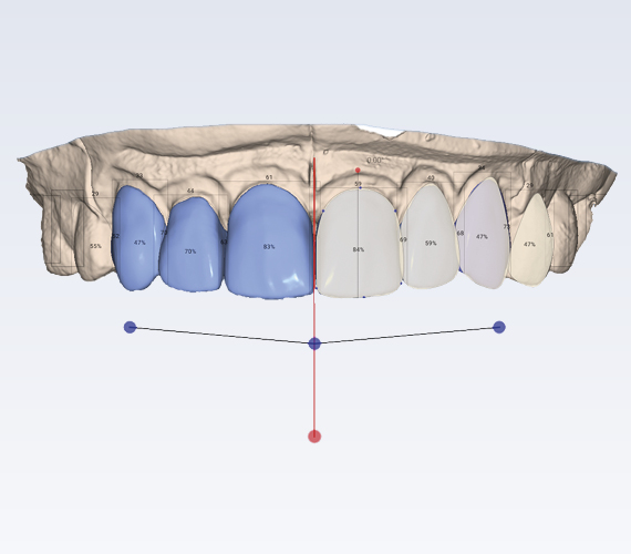 Planmeca Smile Design CAD/CAM clear