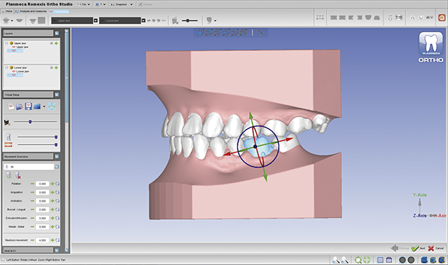 Planmeca introduces new 3D tools for orthodontists and