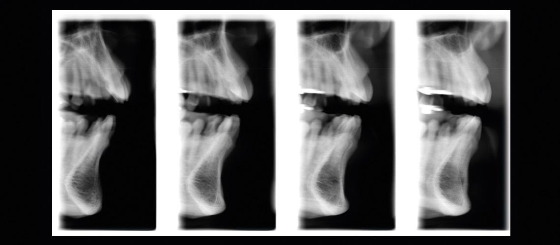 Cross-sectional tomography