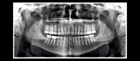 Pdf maxillofacial imaging