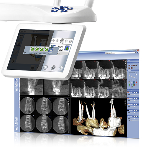 Endodontic imaging mode