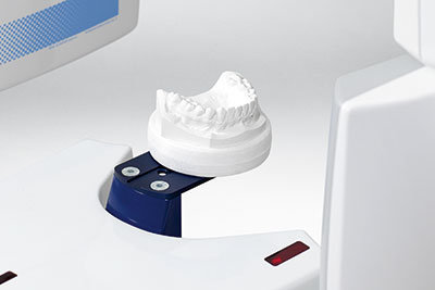 Scanning a plaster cast to digital model
