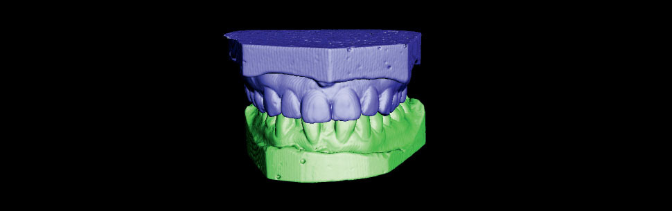 Upper and lower arch models in occlusion