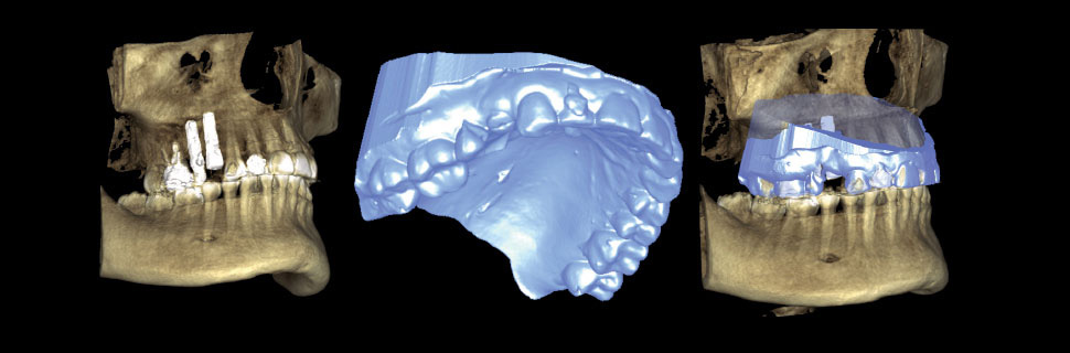 Superimposed CBCT and 3D model of upper jaw
