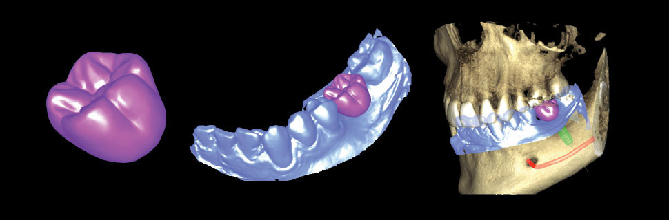 Crown, impression scan, and CBCT for more accurate implant planning