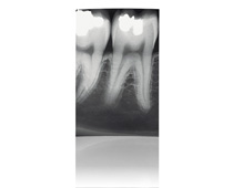 Intraoral imaging