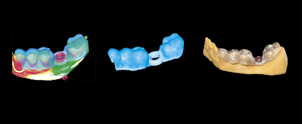 Design your own surgical implant guide based on your implant plan and manufacture it with any suitable 3D printer.
