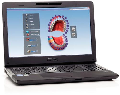 Planmeca Romexis CAD/CAM module