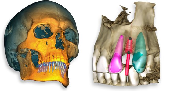 Intelligent tooth segmentation