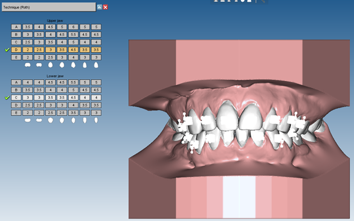 3D Ortho Studio positioning techniques