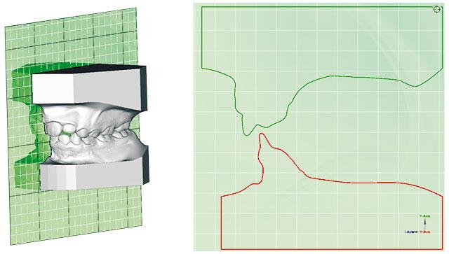 Planmeca Romexis 3D Ortho Studio