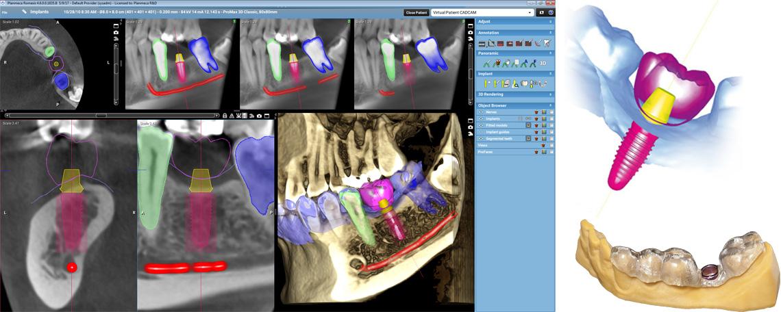 Planmeca Romexis implant planning module