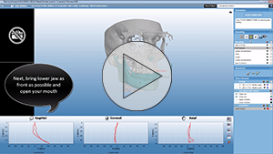 Planmeca 4D™ Jaw Motion – Example Movements in Planmeca Romexis 4.4