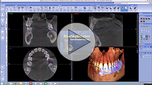 Quick launch 3D volume with impression scans from Planmeca Romexis