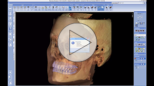 Quick launch 3D volume with 3D photo and impression scans from Planmeca Romexis